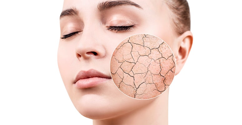 Lo que no se debe hacer para la piel seca
