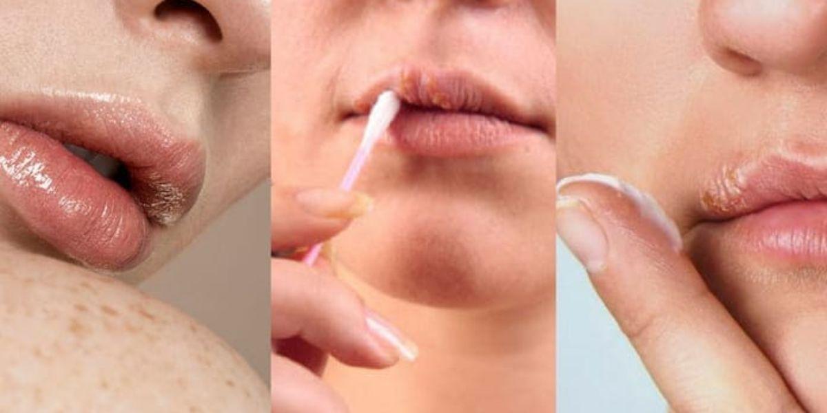 Personas usando medicamento para el herpes labial